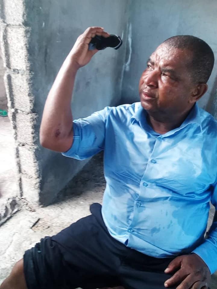 Tirs de sommation et grenades lacrymogènes à Magudjuu