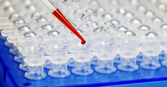 CONTRE LE COVID-19  LE JUSTE PRIX D'UN PCR
